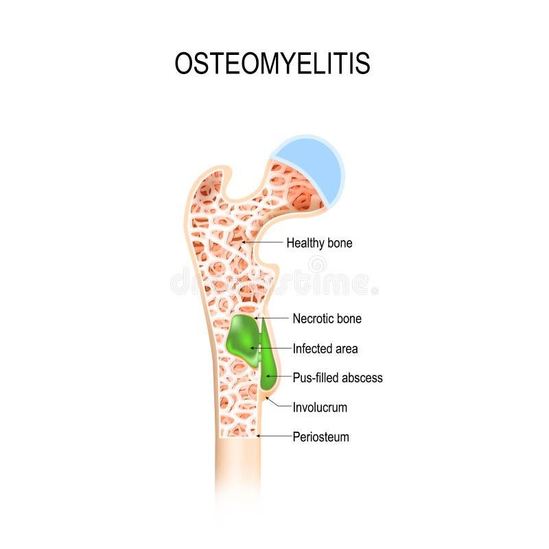 Остеомиелит инфекция в косточке иллюстрация вектора