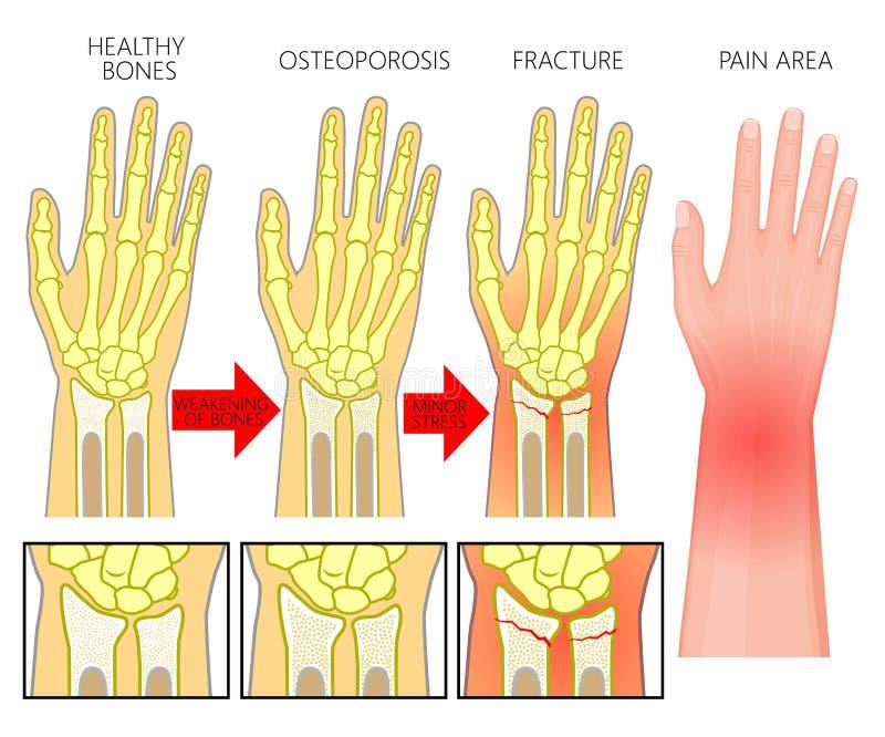 Остеопороз трещиноватости fracture_Wrist косточки бесплатная иллюстрация