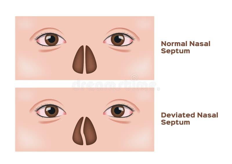 Отклоненный носовой септум/человеческий нос бесплатная иллюстрация
