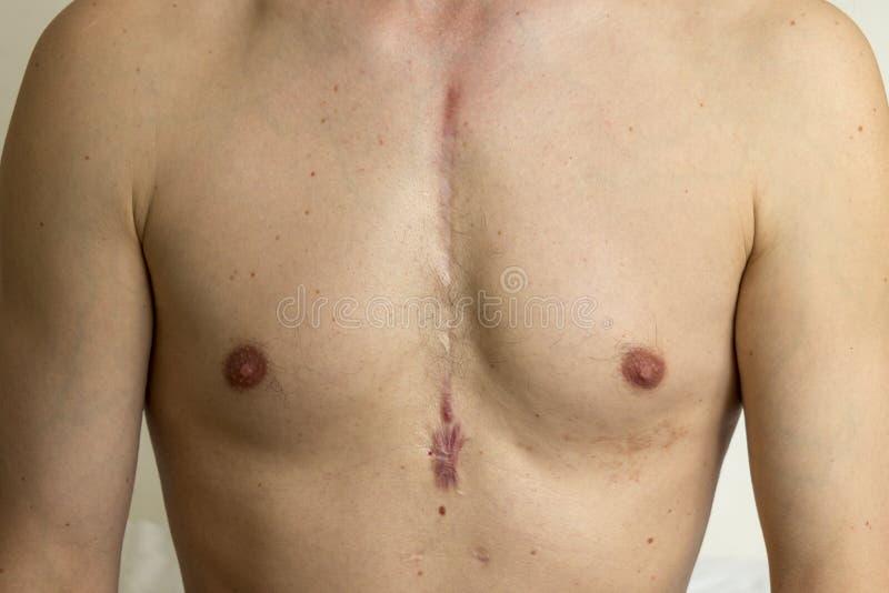 Открытый шрам кардиохирургии стоковое фото rf