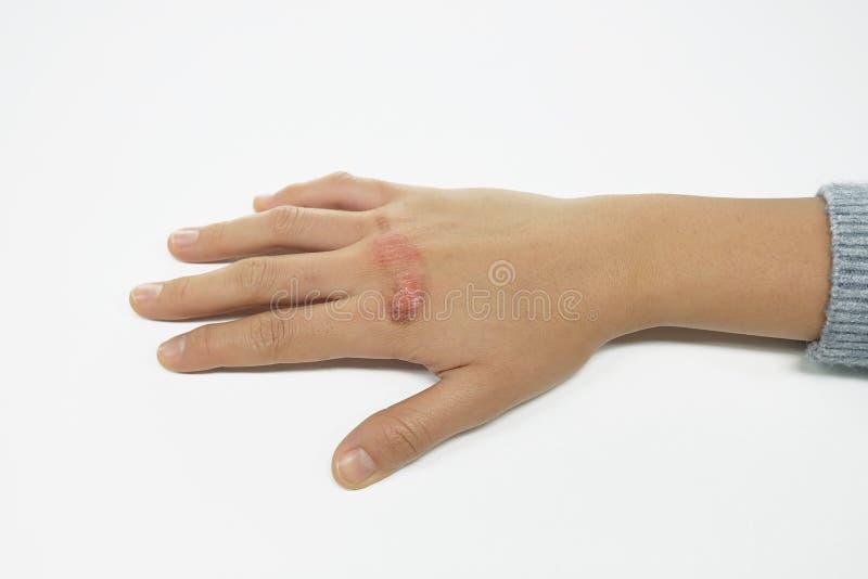 Ошпаренная рука женщины с ушибом ожогом кипятка стоковые фото