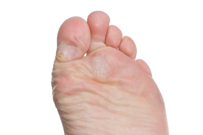 пальцы ноги каллюса стоковые изображения rf