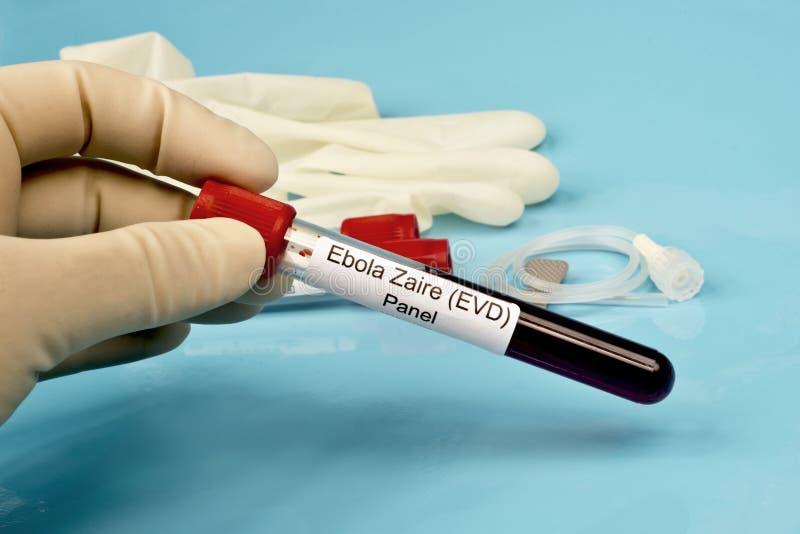 Панель лаборатории Ebola стоковое изображение rf