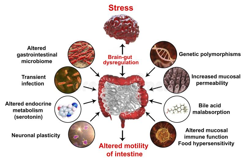 Патофизиология синдрома раздражительного кишечника IBS бесплатная иллюстрация