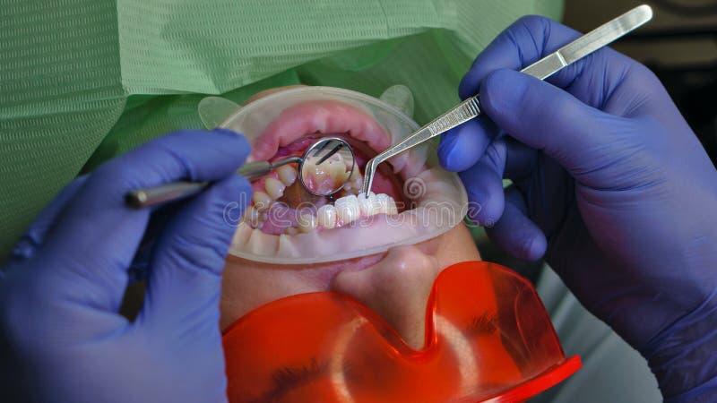 Пациент девушки в зубоврачебной клинике стоковые фото