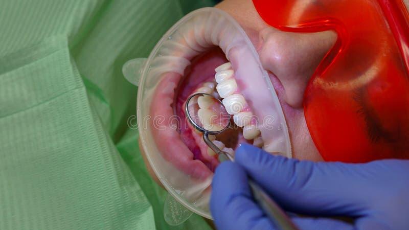 Пациент девушки в зубоврачебной клинике стоковая фотография rf
