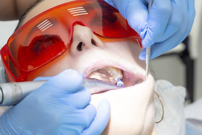 Пациент девушки на приеме на обработке дантиста кариозного зуба девушка лежит на зубоврачебном стуле с его ртом открытым Вертеп стоковые фотографии rf