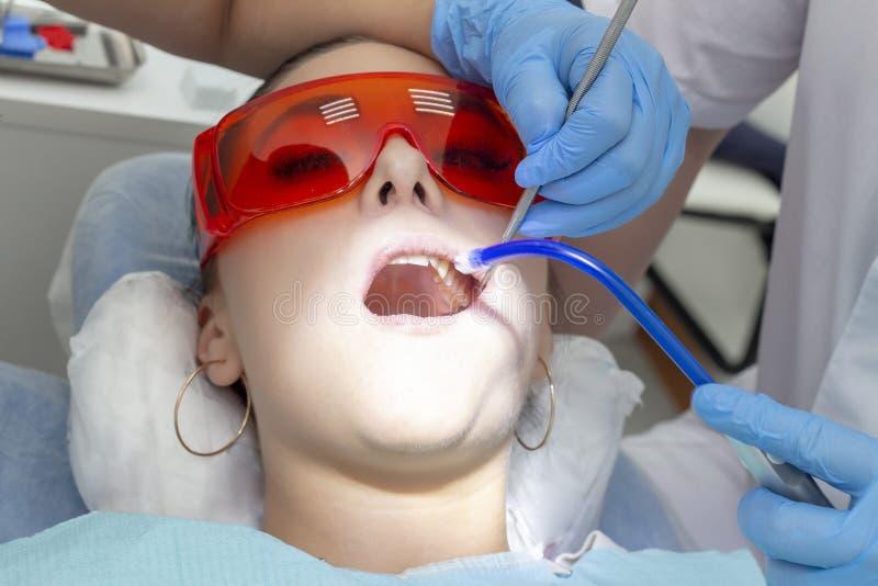 Пациент девушки на приеме на обработке дантиста кариозного зуба девушка лежит на зубоврачебном стуле с его ртом открытым Вертеп стоковое фото rf