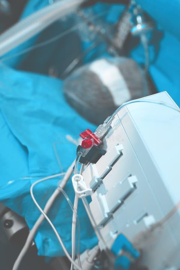 Пациент на операционном столе подключил к вентилятору и a стоковые фото