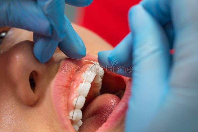 Пациент на приеме ` s дантиста Зубоврачебная обработка, расчалки на зубах стоковые изображения