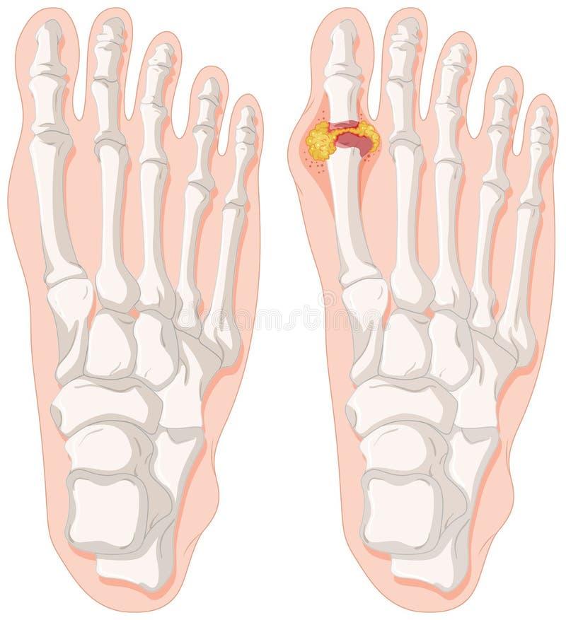 Палец ноги подагры в ногах человека бесплатная иллюстрация