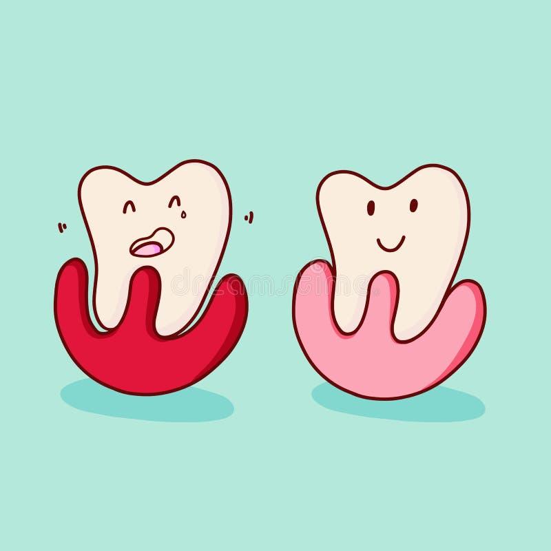 Педиатрическое зубоврачевание Periodontosis Заболевания зуба: periodontosis, иллюстрация мультфильма вектора иллюстрация штока