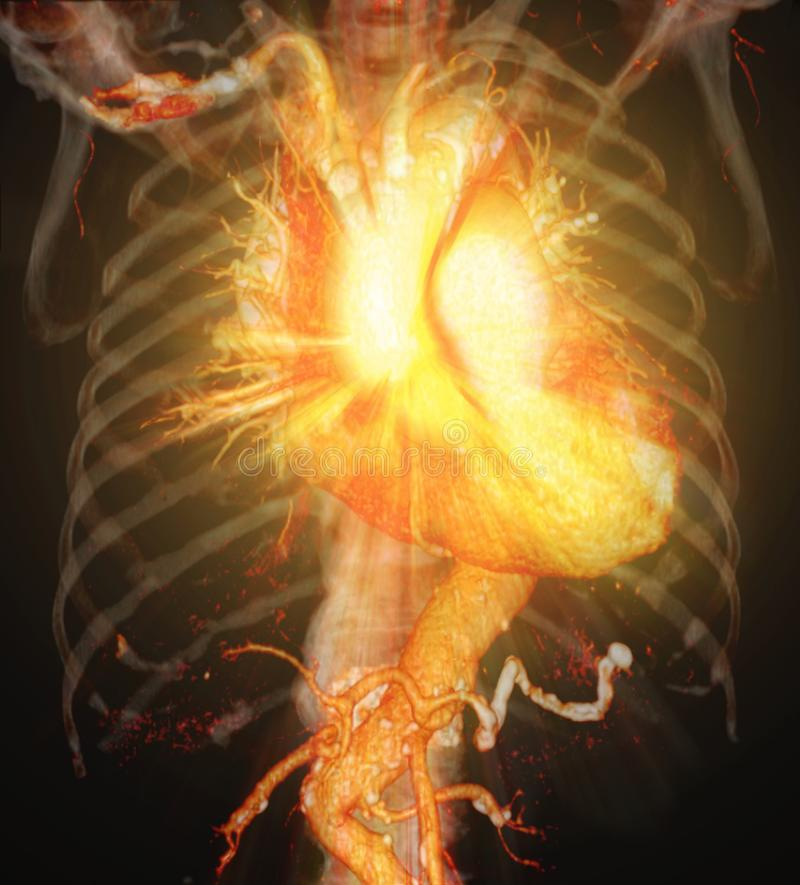 Перевод коронарной артерии 3D CTA иллюстрация вектора