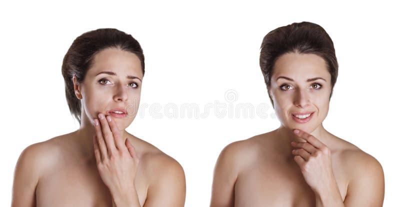 Перед и после изображением красивой молодой женщины отнесл ab стоковая фотография rf