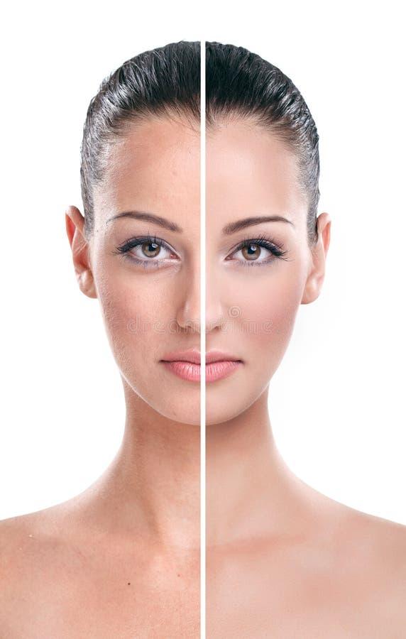 Перед и после - кожей стоковое фото