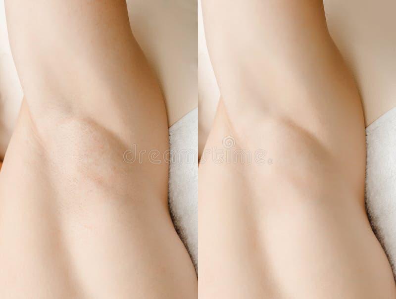 Перед и после мужской обработкой процедуры удаления волос лазера депиляции стоковая фотография rf