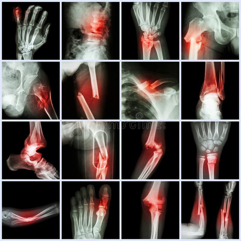 Перелом кости многократной цепи рентгеновского снимка собрания стоковое фото rf