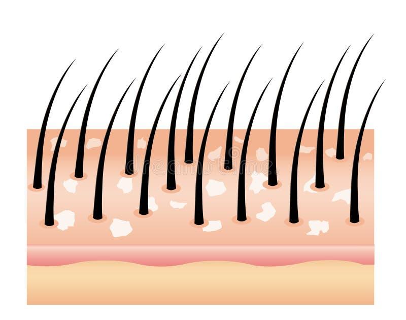 Перхоть на волосах, скальпе волос Грибок на скальпе Причина выпадения волос иллюстрация штока