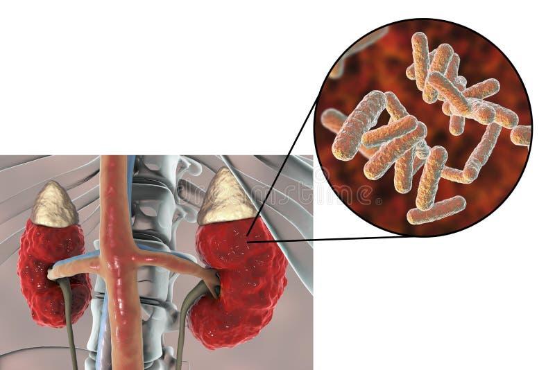Пиелонефрит, взгляд конца-вверх бактерий причинил воспаление почки бесплатная иллюстрация