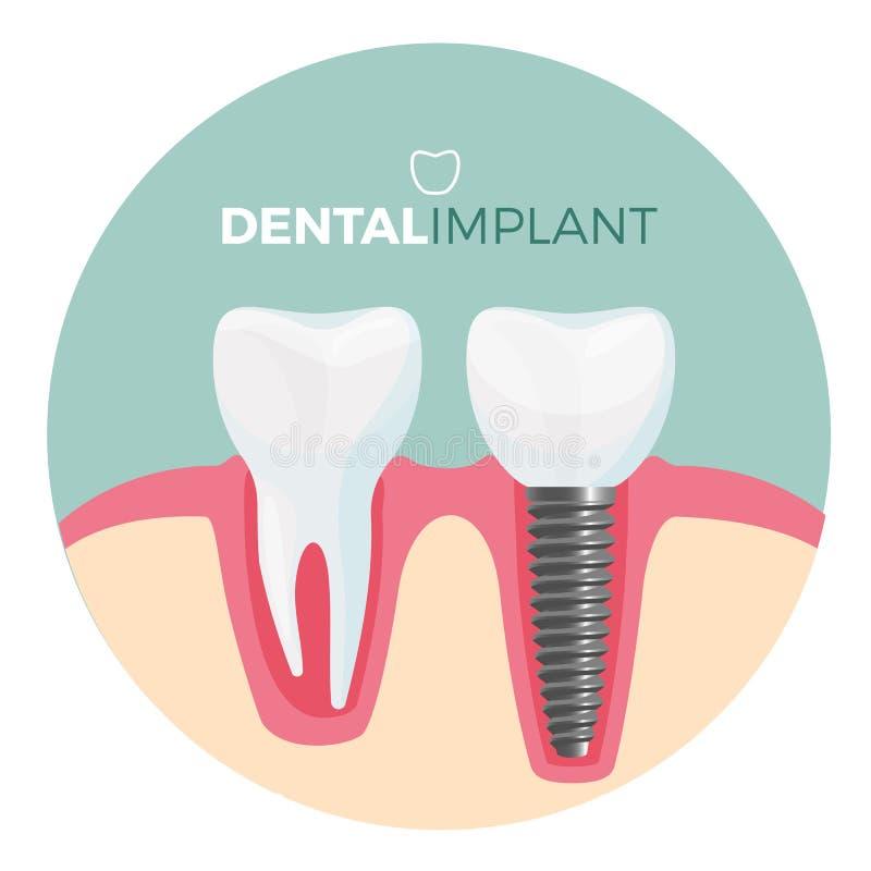 Плакат зубного имплантата с названием на иллюстрации вектора иллюстрация вектора
