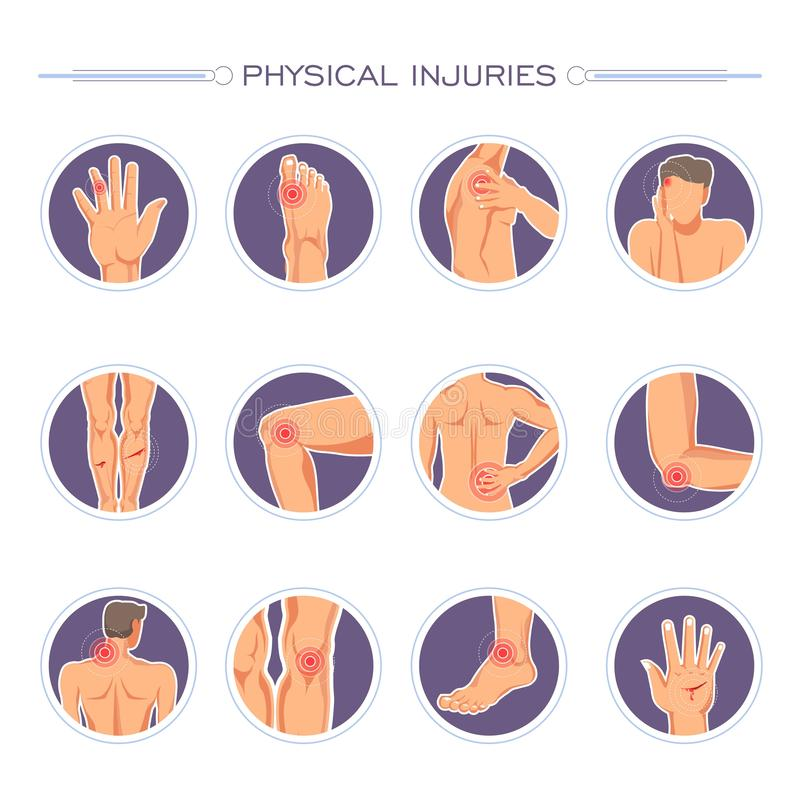 Плакат телесных повреждений с вектором частей тела и ран иллюстрация вектора