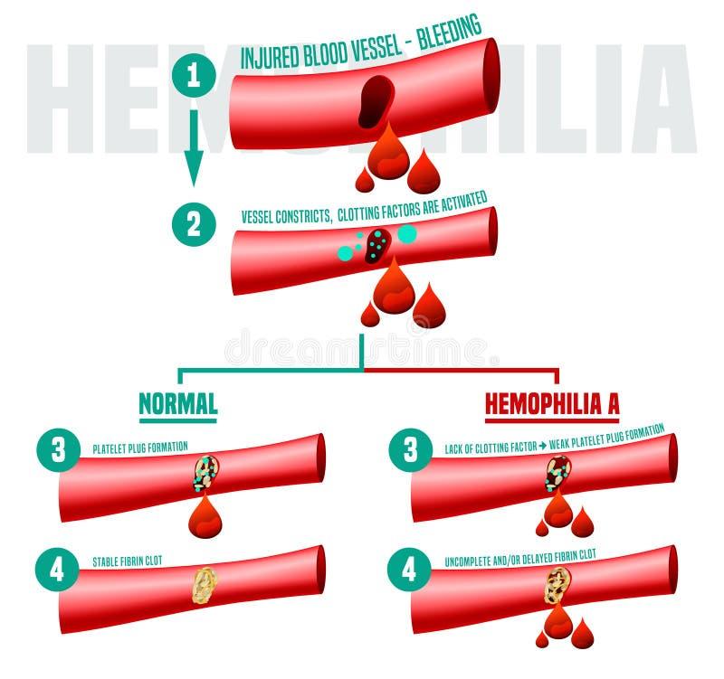 Плакат Infographics кровоточивости бесплатная иллюстрация