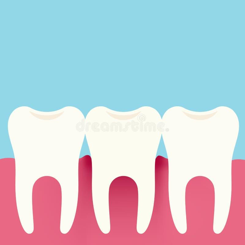 Плоская иллюстрация дизайна 3 зубов, камедей и воспалений десен Зубовр иллюстрация штока