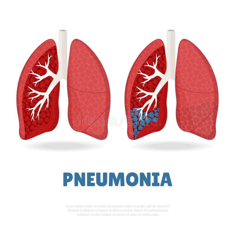 пневмони иллюстрация вектора