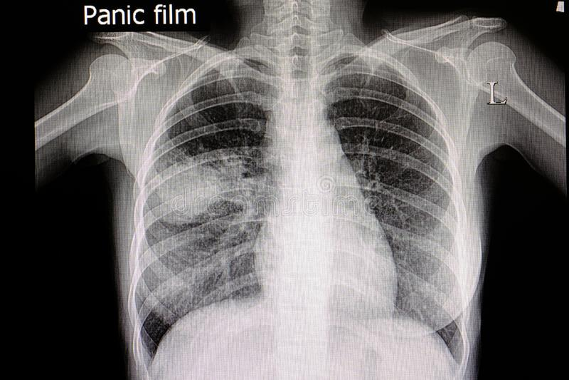 пневмони стоковые фотографии rf
