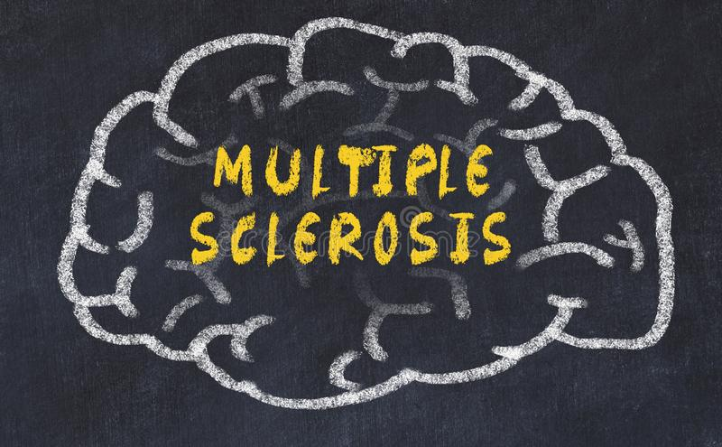 Побелите чертеж мелом человеческого мозга с рассеянным склерозом надписи стоковое изображение