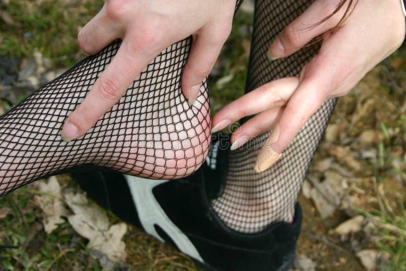 Download повреждения ноги стоковое фото. изображение насчитывающей толпясь - 483538