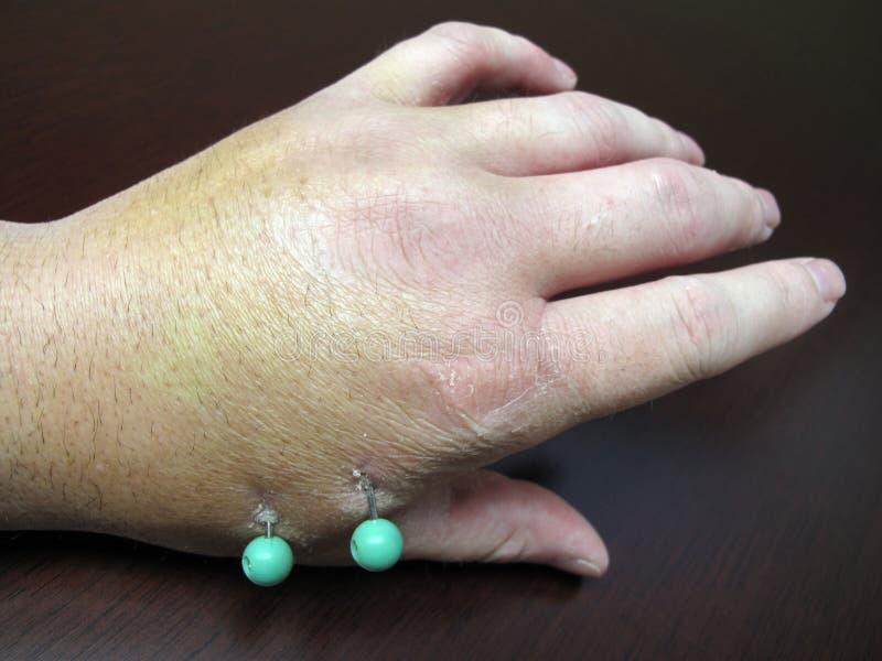 поврежденная рука прикалывает хирургическое стоковые изображения