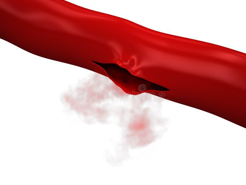 Поврежданная вена - кровотечение артерии иллюстрация штока