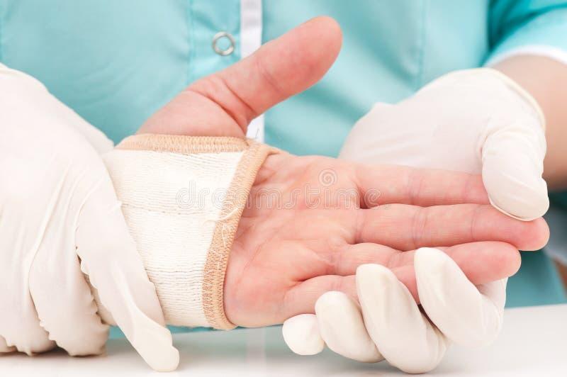 поврежденная рука стоковые фото