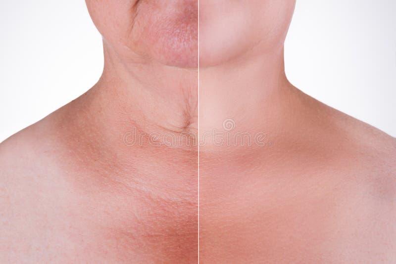 Подмолаживание кожи на шеи, раньше после анти- старея концепции, обработки морщинки, подтяжки лица и пластической хирургии стоковая фотография rf