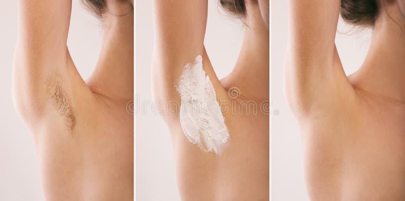 Подмышка женщины волосато Before and after стоковые изображения