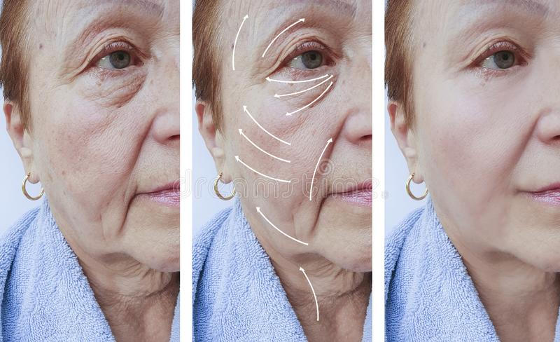 Пожилые люди женщины смотрят на подмолаживание перед и после процедурами, стрелку морщинок кожи стоковые изображения rf