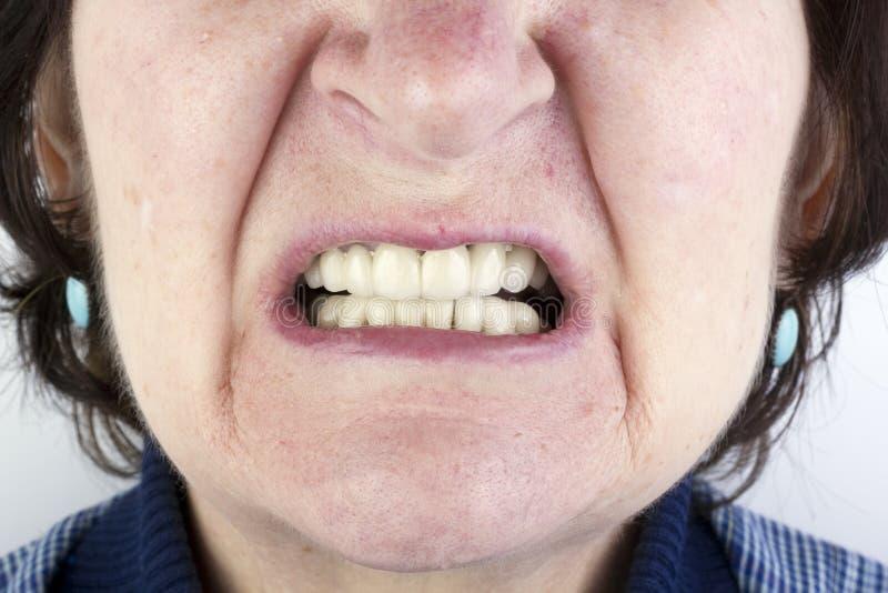 Пожилая женщина с новыми керамическими dentures стоковая фотография rf