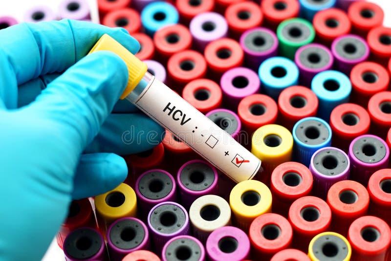 Позитв HCV стоковое фото