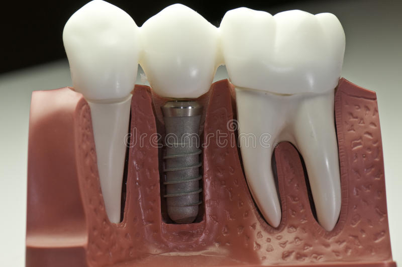 покрынная модель зубоврачебного implant стоковое фото rf