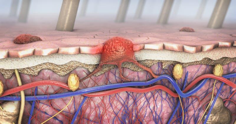 Поперечное сечение больной кожи с меланомой которая входит в кровоток и лимфатический тракт иллюстрация штока
