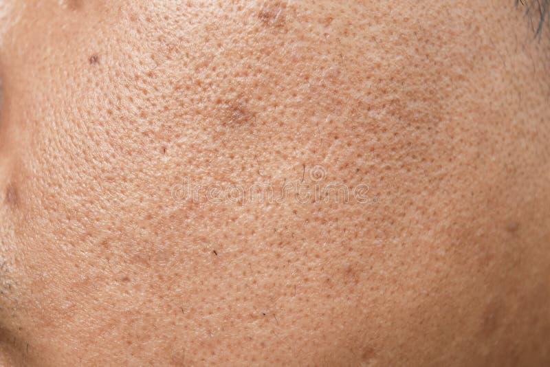 Поры и маслообразные на поверхностной молодой азиатской коже стороны человека не заботятся в течение длительного времени стоковое фото