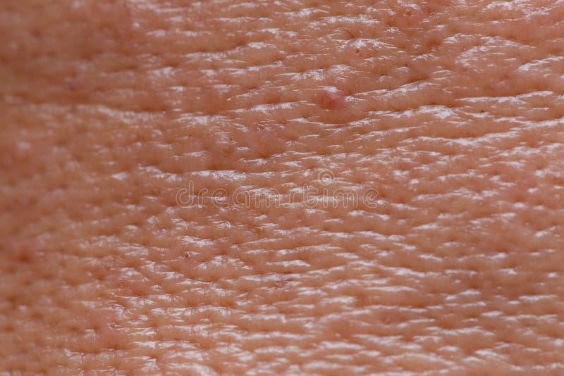 Поры мужской кожи стороны маслообразной большие со съемкой макроса уг стоковое фото rf