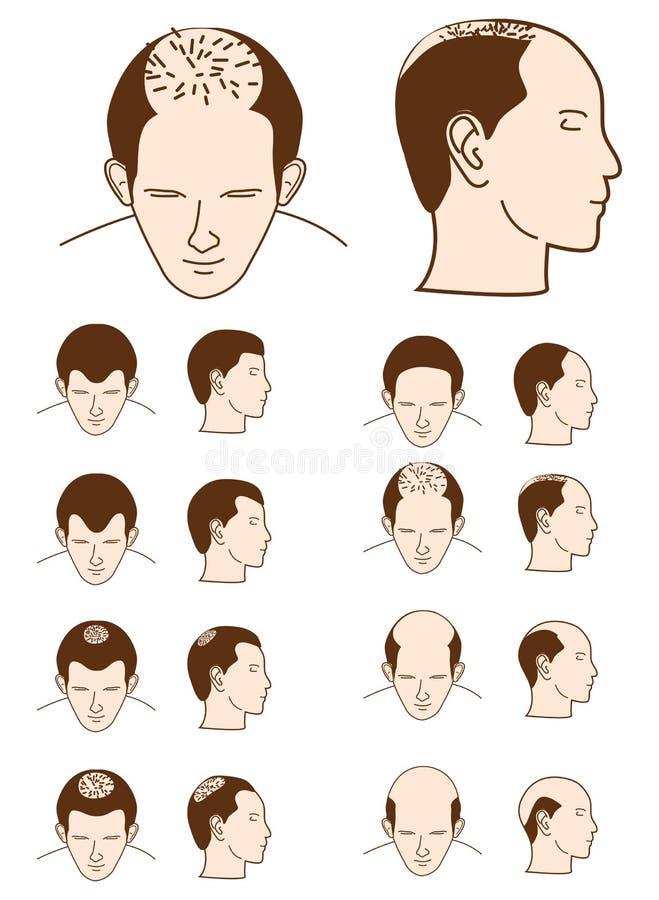 потеря волос бесплатная иллюстрация