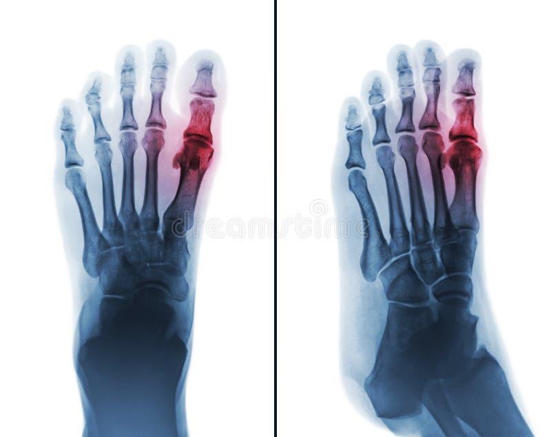 Подагрический артрит снимите рентгеновский снимок соединения ноги человека и артрита вначале metatarsophalangeal стоковое изображение rf
