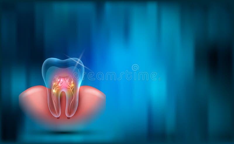 предпосылка зубоврачебная иллюстрация вектора