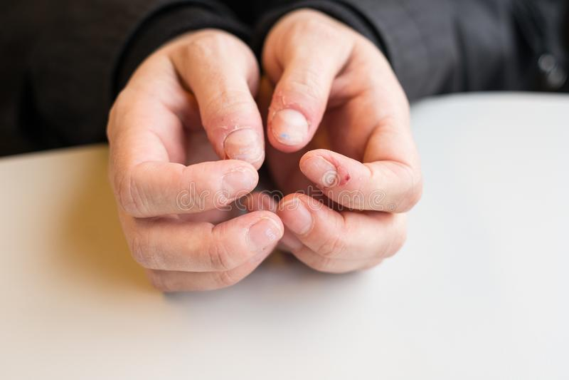 Привычка ужасного ногтя сдерживая стоковое изображение rf
