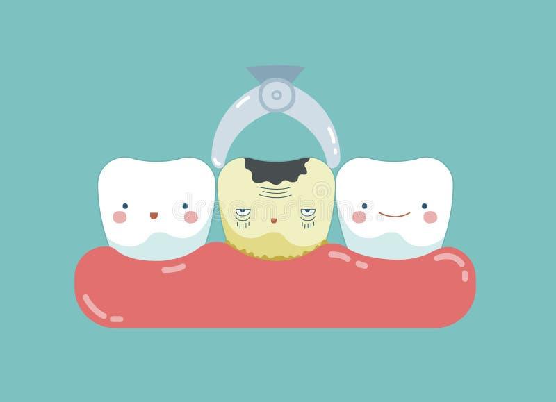 Принять распал зуб вне, зубы и концепция зуба зубоврачебного иллюстрация вектора