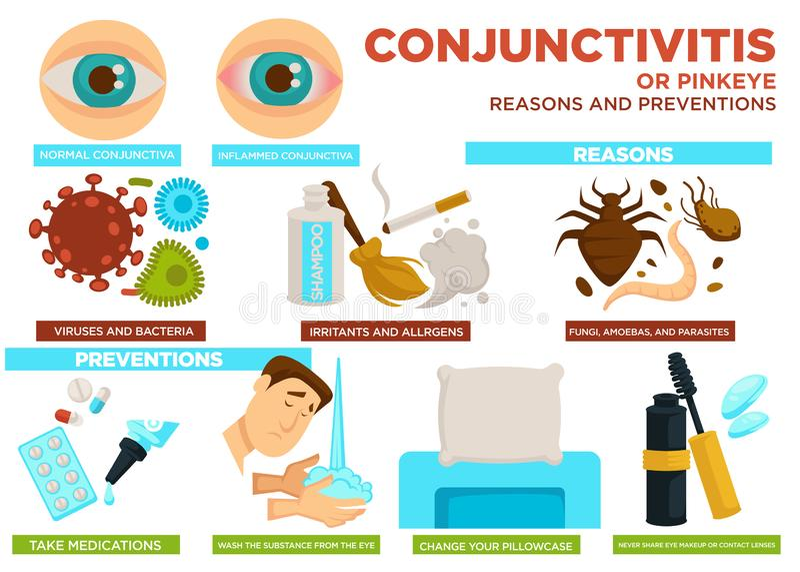 Причины конюнктивита или pinkeye и вектор плаката предохранений иллюстрация штока