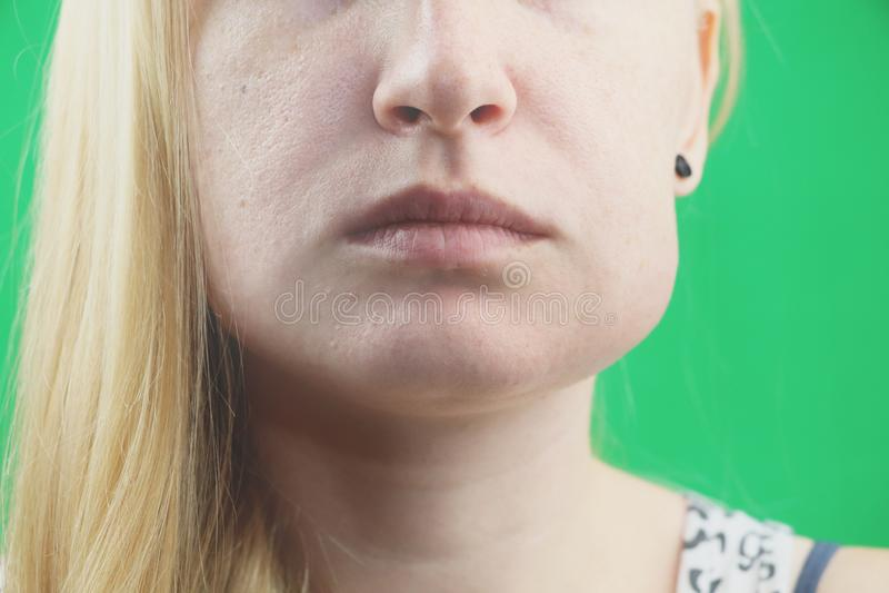 Проблема зубов Gumboil, поток и опухать щеки Крупный план красивой унылой девушки страдая от сильной боли зуба привлекательностей стоковое изображение rf